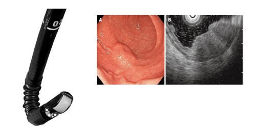 O ecoendoscópio combina duas modalidades que, em simultâneo, integram a visão endoscópica (A) e a ultra-sonografia de alta frequência (B).
